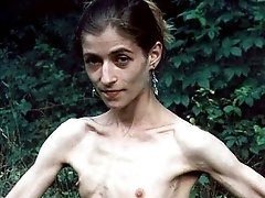 anorexic girls